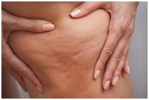 dermaroller cellulite